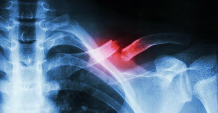 broken bone injury - xray