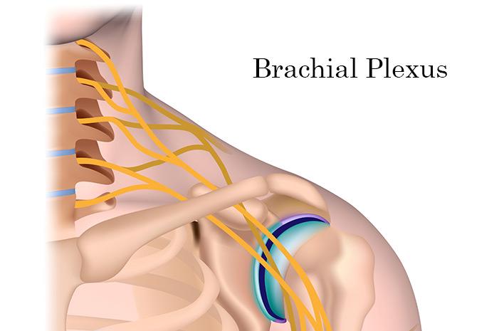 Injury to brachial plexus can happen at birth
