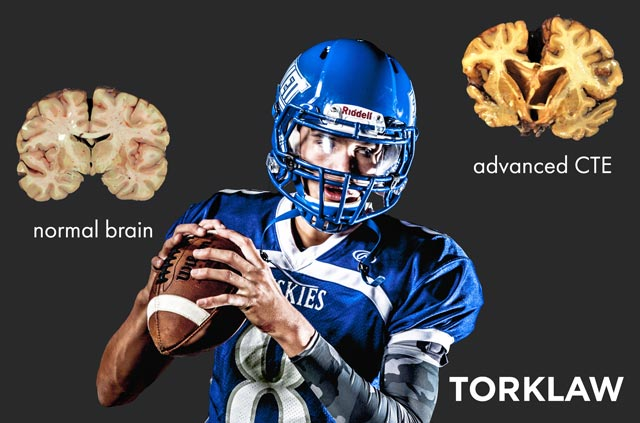 Chronic traumatic encephalopathy CTE