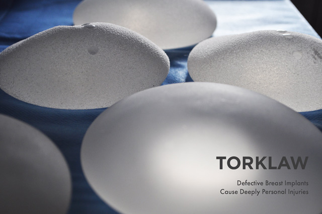 defective breast implants - product injury