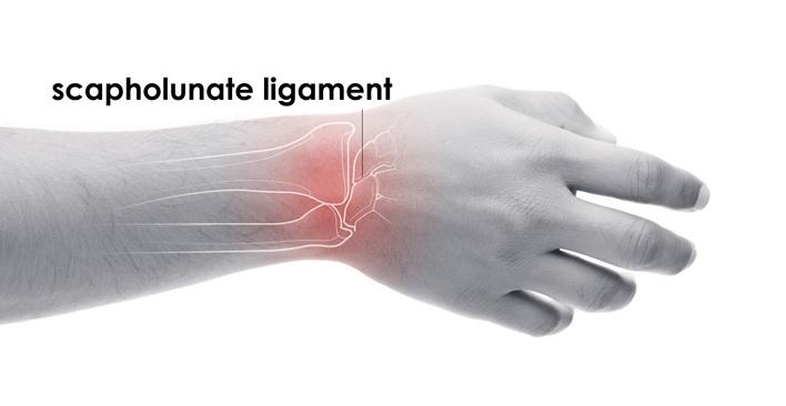scapholunate ligament tear