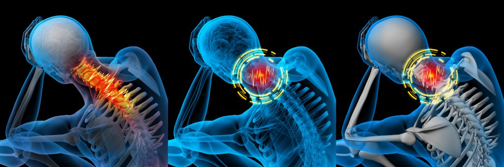 neck pain, 3d,Rendered,Illustration,Of,Pain,Neck,X-ray